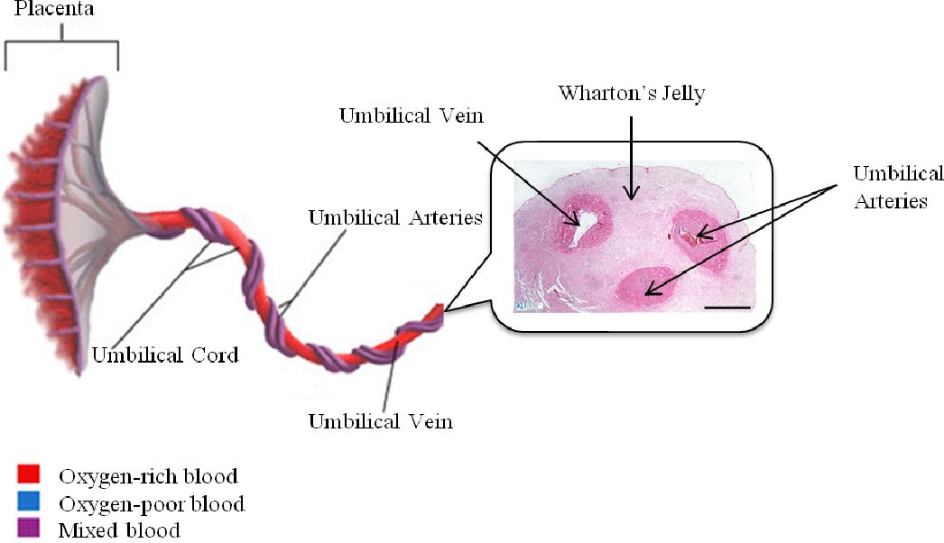 Pdf Umbilical Cord Blood Hematopoietic Stem Cell Transplantation An Alternative To Bone Marrow Semantic Scholar