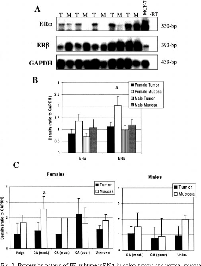 Figure 2 From Expression Of Estrogen Receptor Er Subtypes And Er B Isoforms In Colon Cancer 1 Semantic Scholar