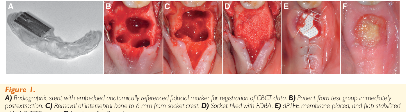 Evaluation Of Healing At Molar Extraction Sites With And Without Ridge Preservation A Randomized Controlled Clinical Trial Semantic Scholar