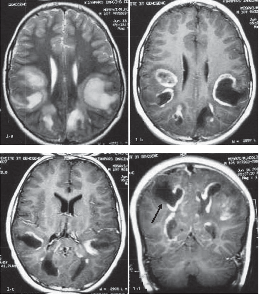 Figure 1 from Tumefactive Multiple Sclerosis Variants