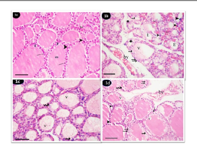 Figure 1 From Effect Of Tartrazine On Thyroid Gland Of Male Rat