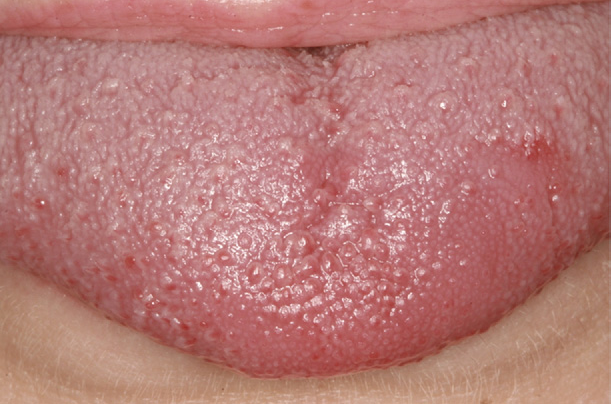 Figure 5 from Chronic lingual papulosis: new, independent