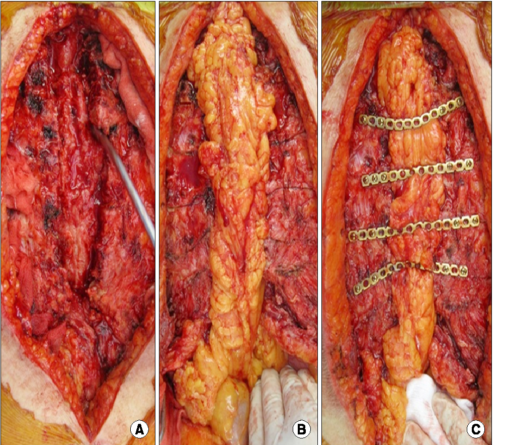 Figure 1 from Titanium Plate Fixation for Sternal Dehiscence