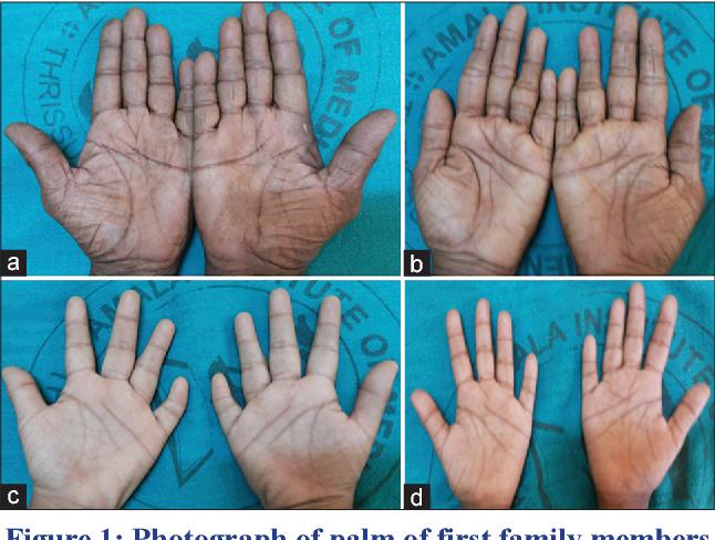 Crease disorders palmar single genetic ADNP syndrome
