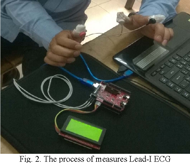 Implementation of the ECG biometric identification by using
