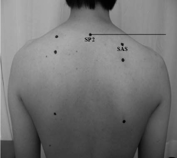 PDF Effect of scapular elevation taping on scapular ...