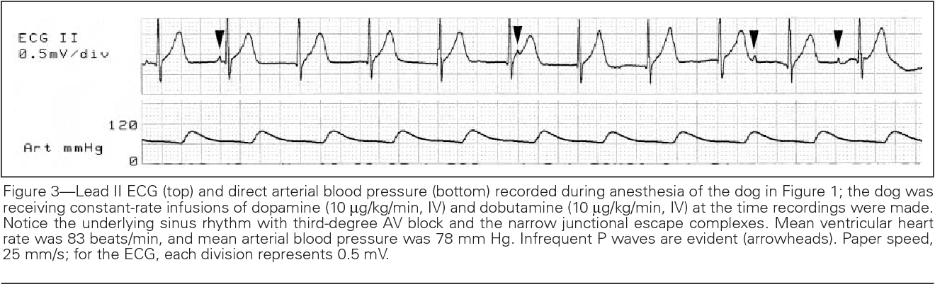 Figure 3 from Anesthesia case of the month  Treating