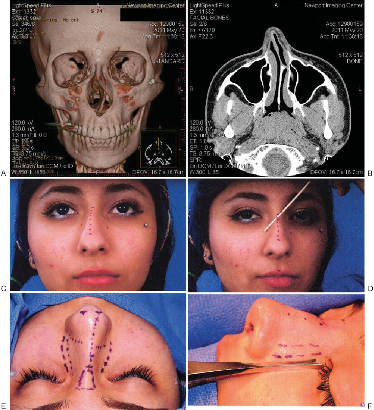 Figure 3 From Rhinoplasty The Asymmetric Crooked Nose An Overview