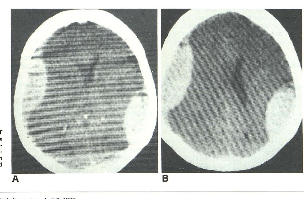 Hematoma vs epidural subdural hematoma Epidural vs