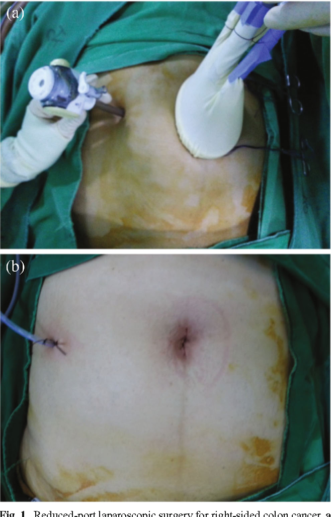 Figure 1 From Short Term Outcomes Following Reduced Port Single Port And Multi Port Laparoscopic Surgery For Colon Cancer Tailored Laparoscopic Approaches Based On Tumor Size And Nodal Status Semantic Scholar