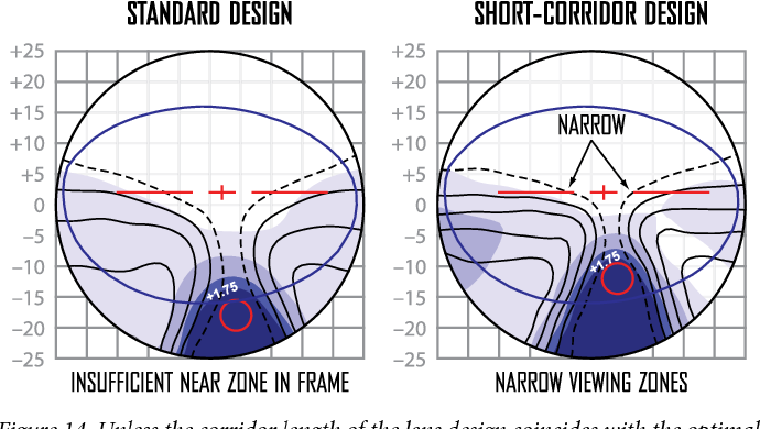 Figure 14 from Personalized Lenses by ZEISS Zeiss Individual