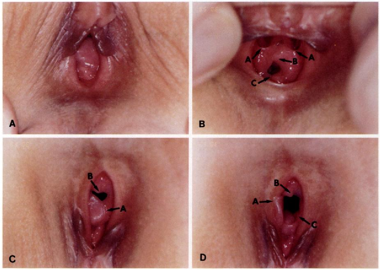 Clinical Management Of Genital Chronic Gvhd
