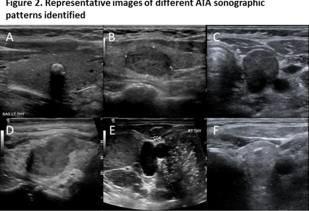 Figure 2 From New American Thyroid Association Sonographic