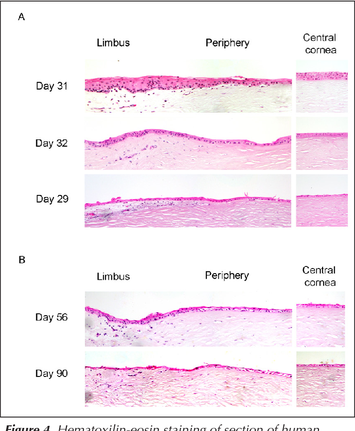 Figure 4 from Epithelial Desquamation , Regeneration and