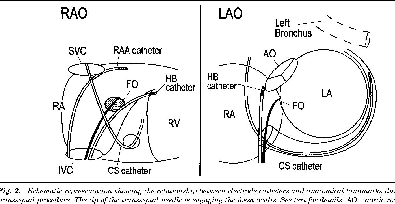 Transseptal Left Heart Catheterization For Cardiac Ablation