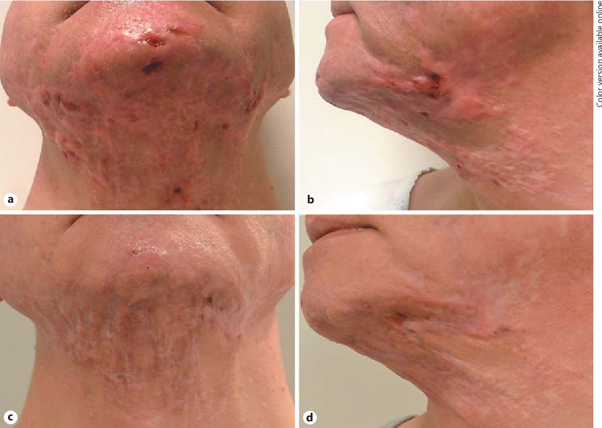 An Atypical Localized Form Of Hidradenitis Suppurativa Of The Jawline And Neck Mimicking Severe Cystic Acne On Presentation Semantic Scholar