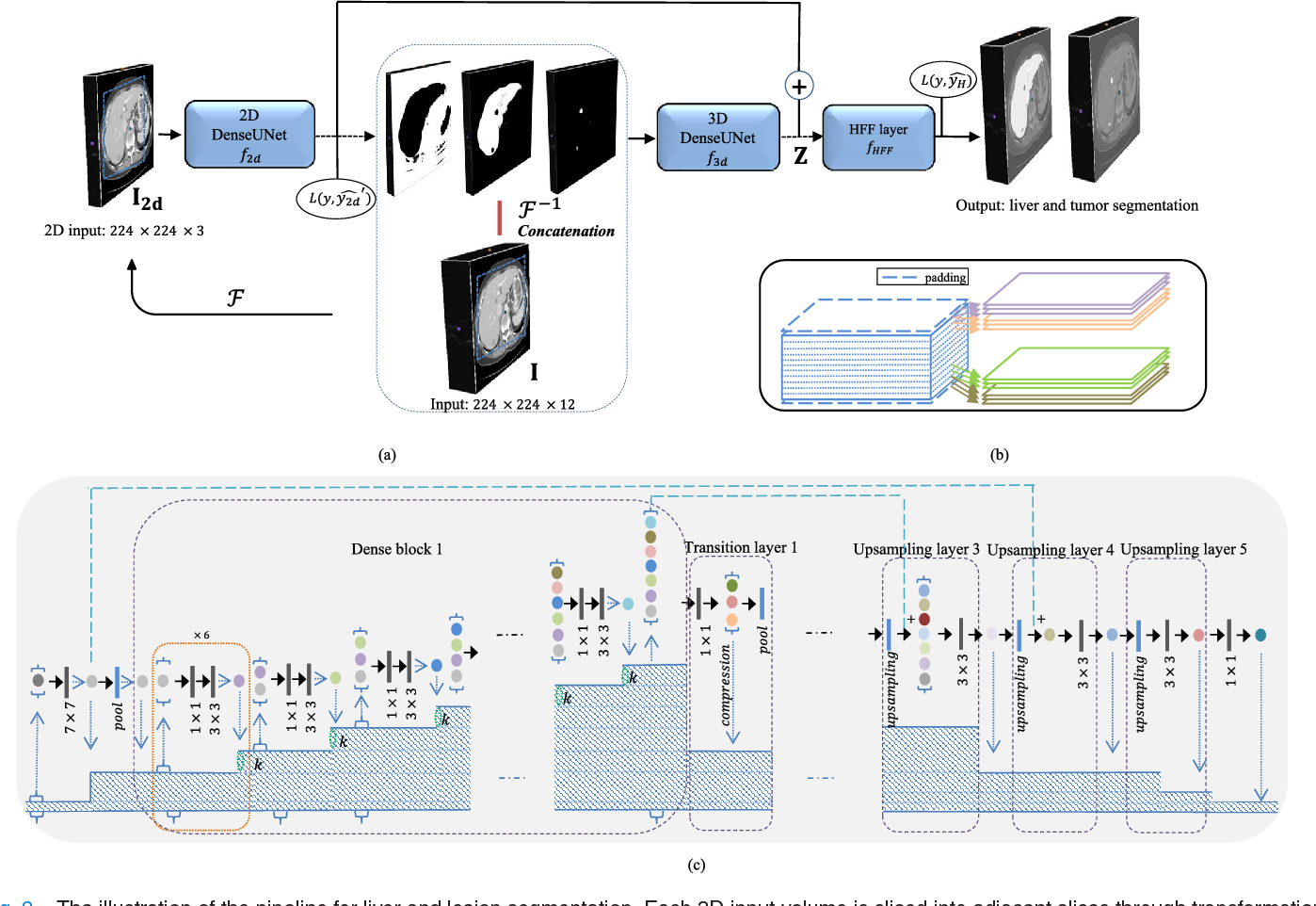 H-DenseUNet: Hybrid Densely Connected UNet for Liver and