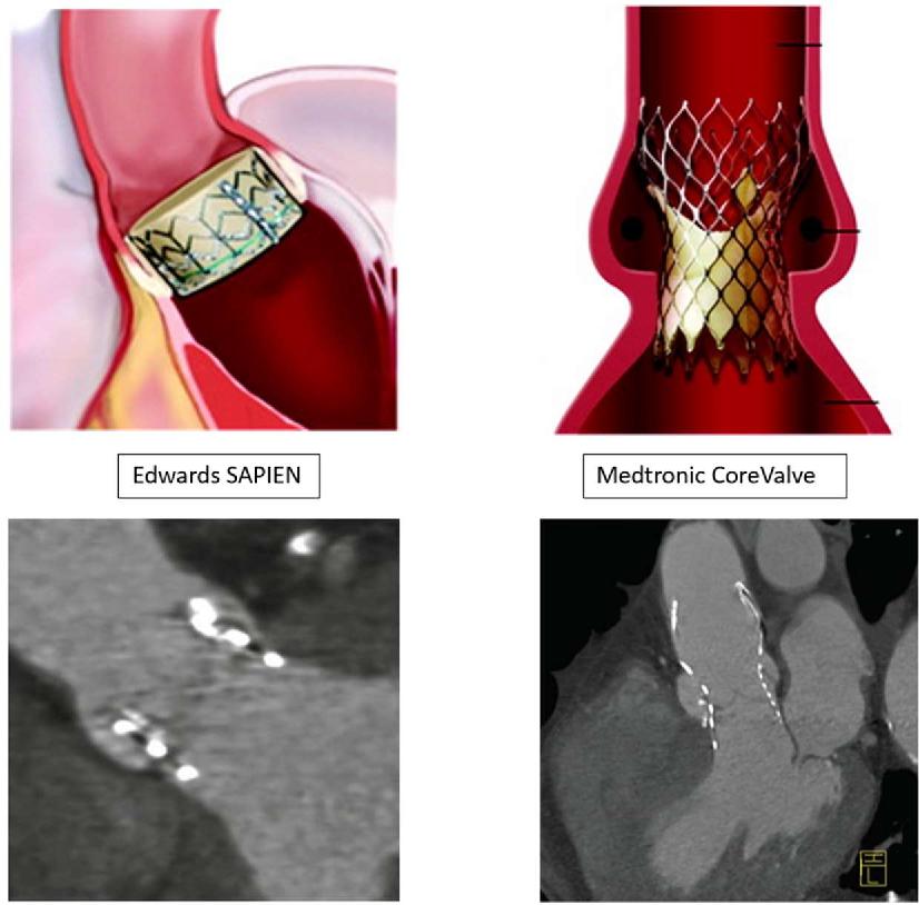 Figure 3 - Schémas représentant les valves Edwards SAPIEN et Medtronic CoreValve en place dans la racine aortique, d'après Piazza et al. (2008) [26], corrélées aux reconstructions obliques coronales TDM post TAVI, d'après Plank et al. (2014) [27].