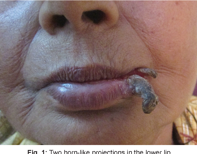 Figure 1 from et al 726 Cutaneous Horn with Underlying