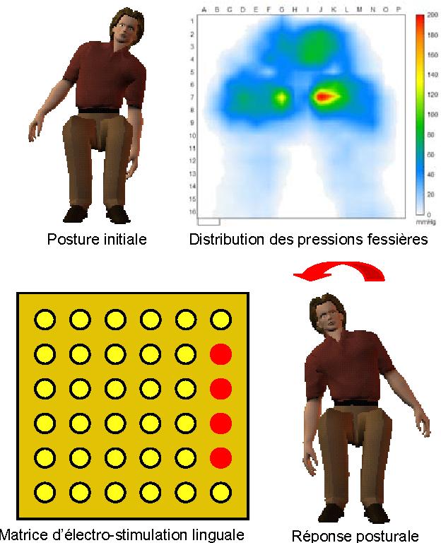 Figure 6 from Suppl\'eance perceptive par \'electro ...
