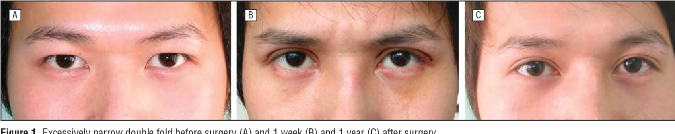 Repair of unsatisfactory double eyelid after double-eyelid