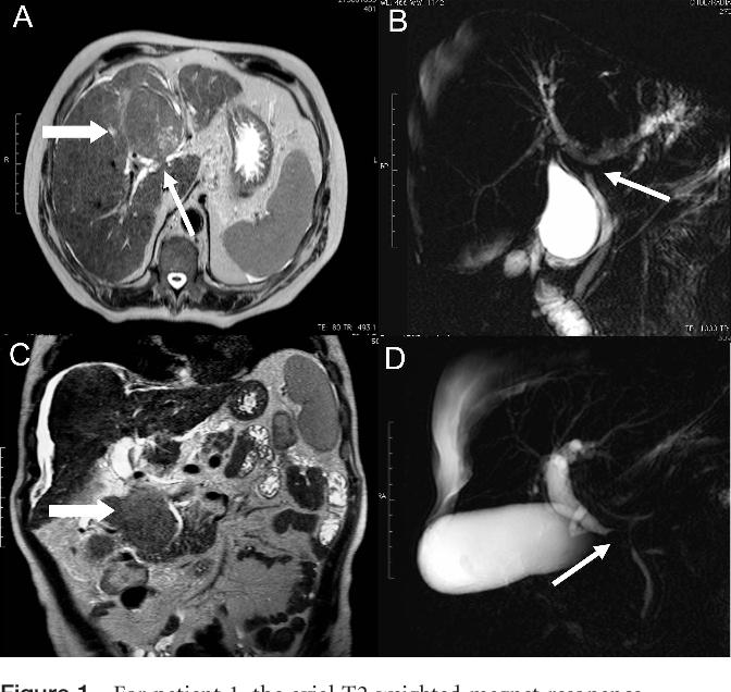 Fatal hemobilia in advanced hepatocellular carcinoma invading ...