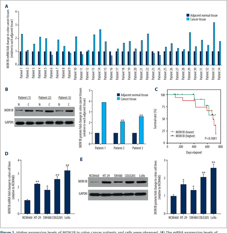 Pdf Knockdown Of Mon1b Exerts Anti Tumor Effects In Colon Cancer In Vitro Semantic Scholar