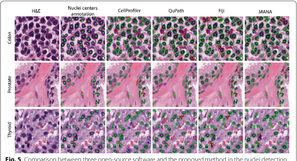 Figure 5 from Multi-tissue and multi-scale approach for