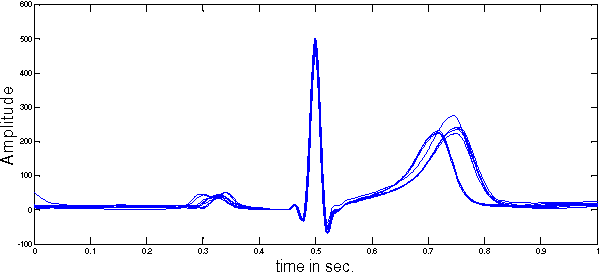 Figure 4 from Human identification using time normalized QT