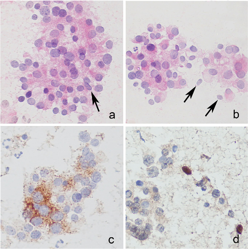 Thyroid Paraganglioma: Naked Nuclei as a Clue to