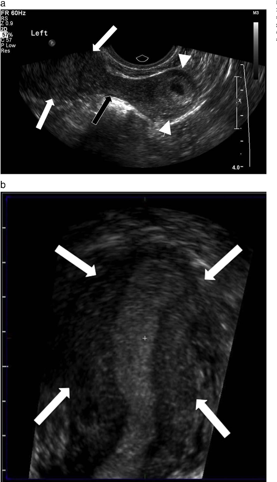 dating early pregnancy ultrasound