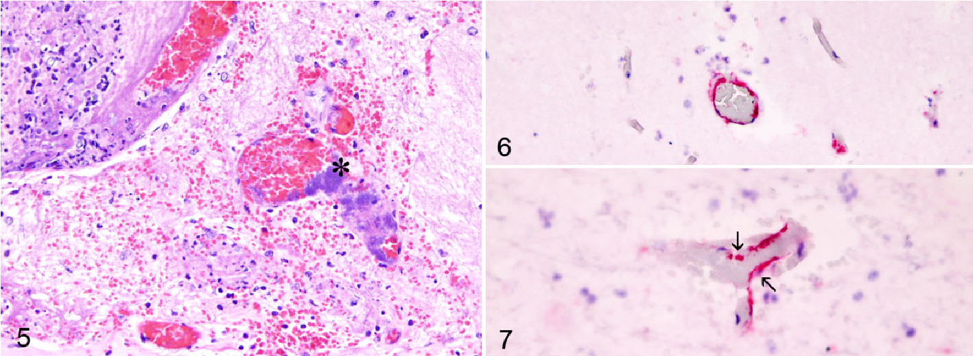 Figure 5 from Effect of Histophilus somni on Heart and Brain