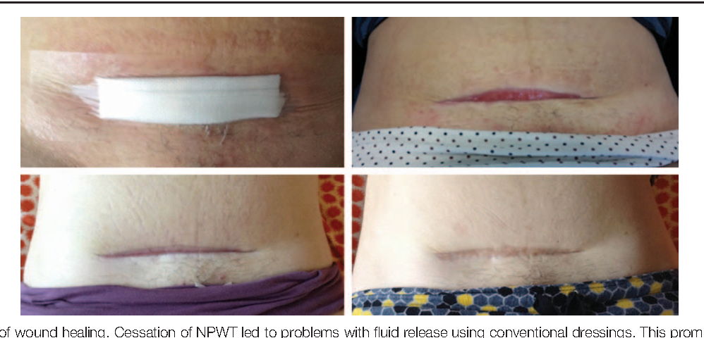 Figure 4 from Negative pressure wound therapy aids recovery