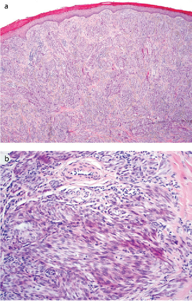 Figure 2 From Cutaneous Clear Cell Sarcoma In A 12 Year Old