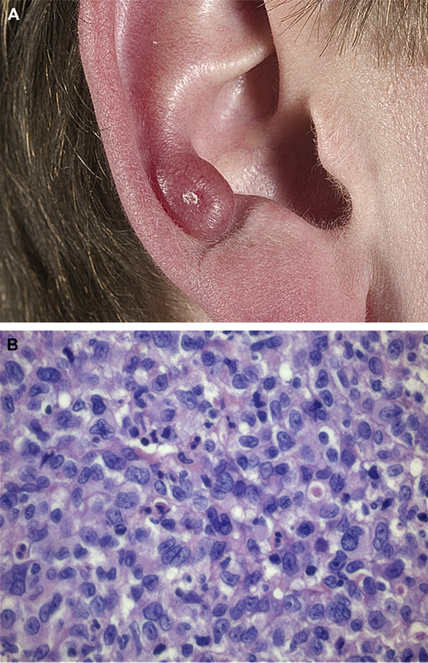 CD30-Negative Cutaneous T-Cell Lymphomas Other than Mycosis