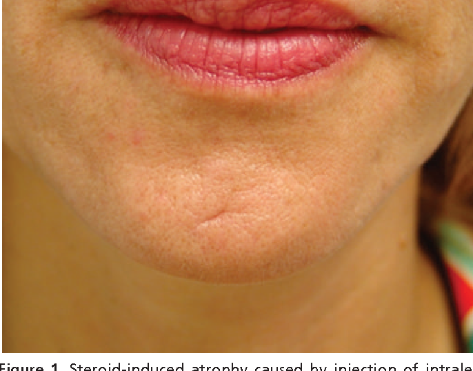 Figure 1 from Treatment of local, persistent cutaneous