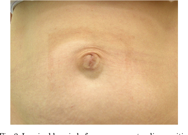 Figure 3 from Mesh repair of umbilical hernia without a