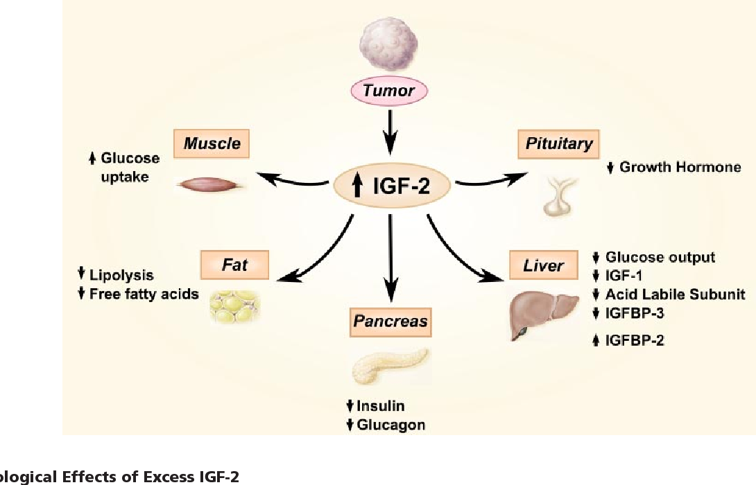 Figure 5 from Tumors, IGF-2, and hypoglycemia: insights from the clinic,  the laboratory, and the historical archive. | Semantic Scholar