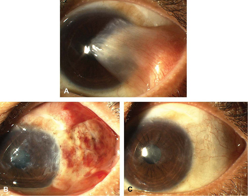 Figure 1 from Assessment of fibrin glue in pterygium surgery