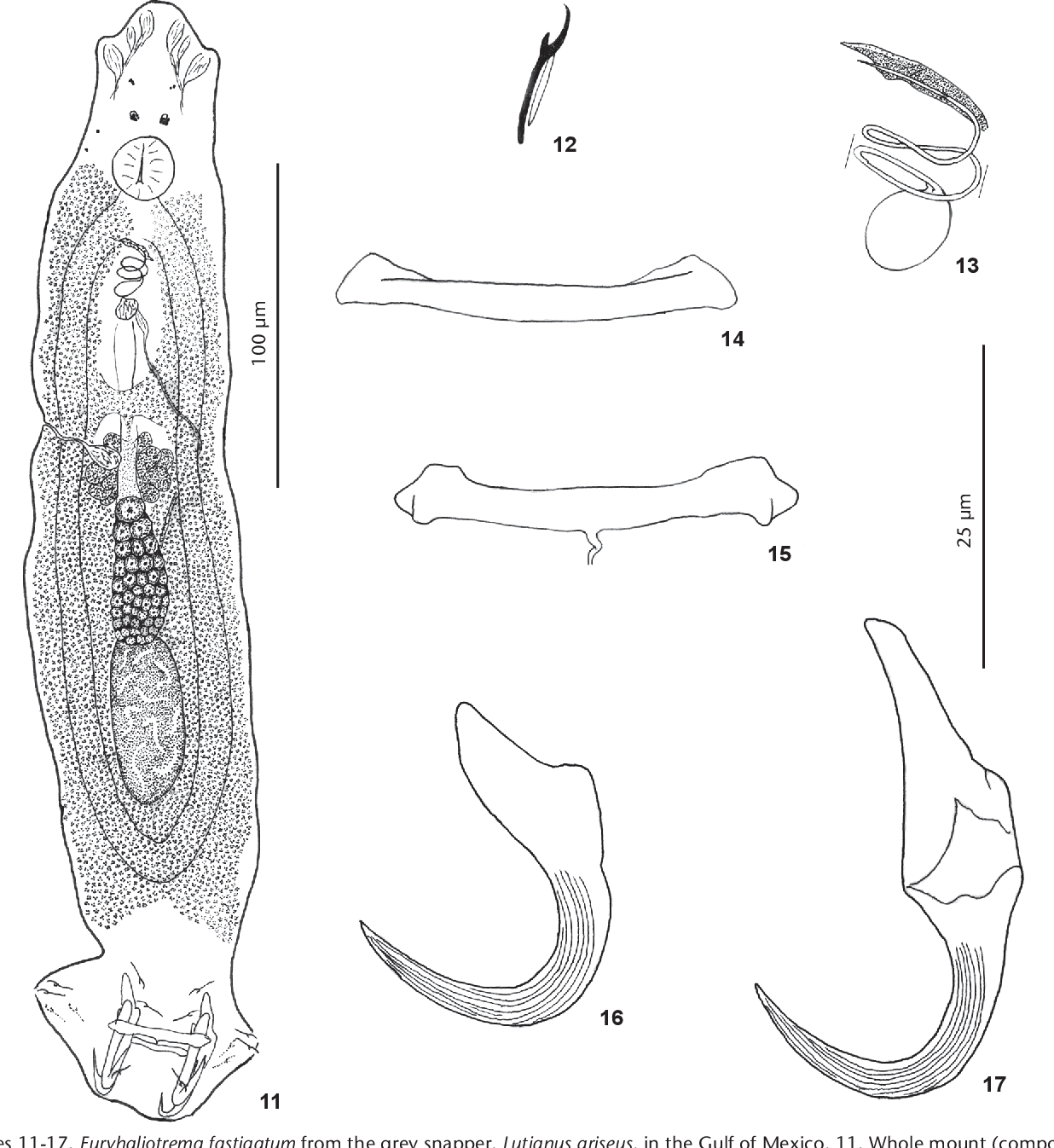 figure 11-17