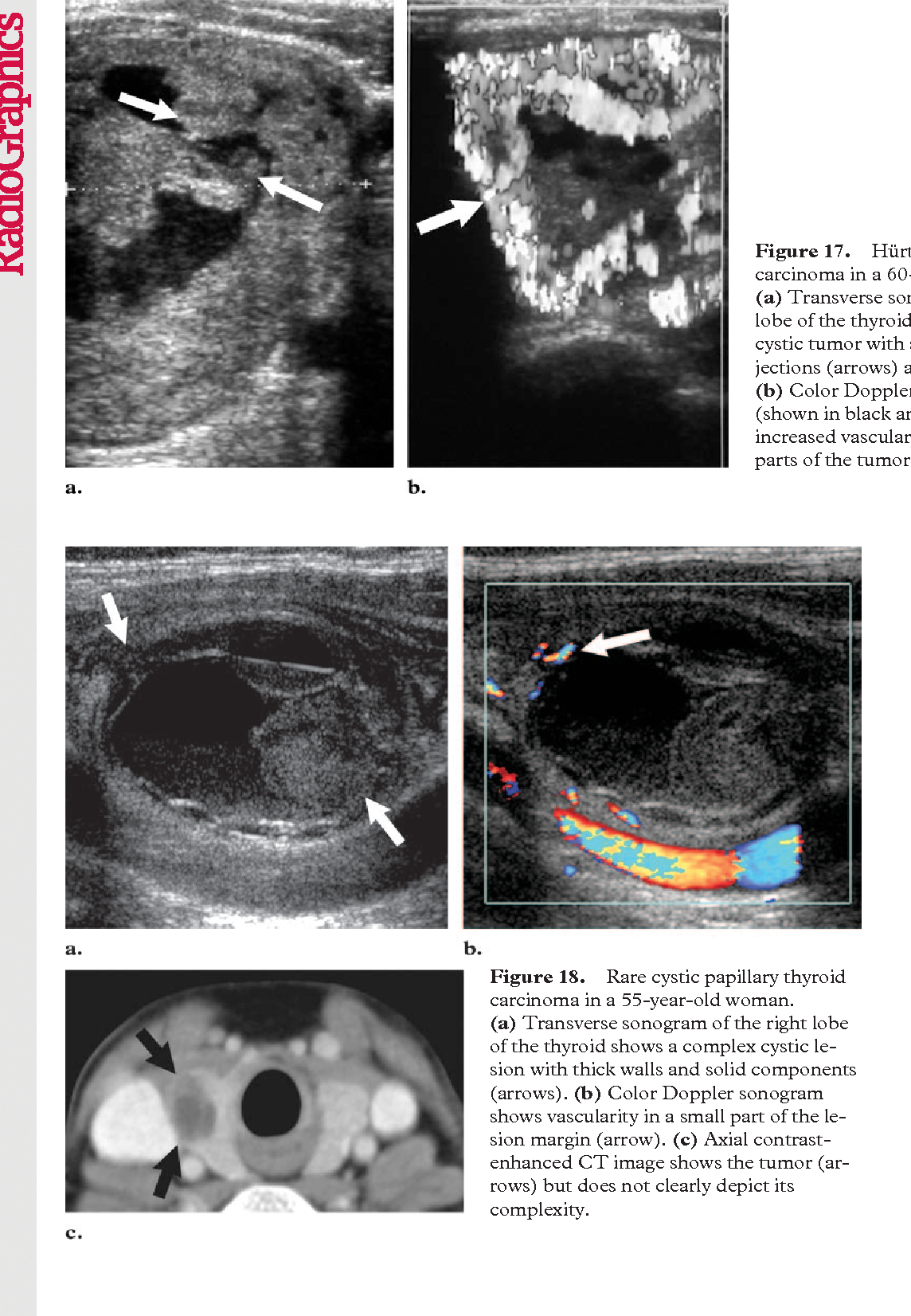 Pdf Us Features Of Thyroid Malignancy Pearls And Pitfalls Semantic Scholar