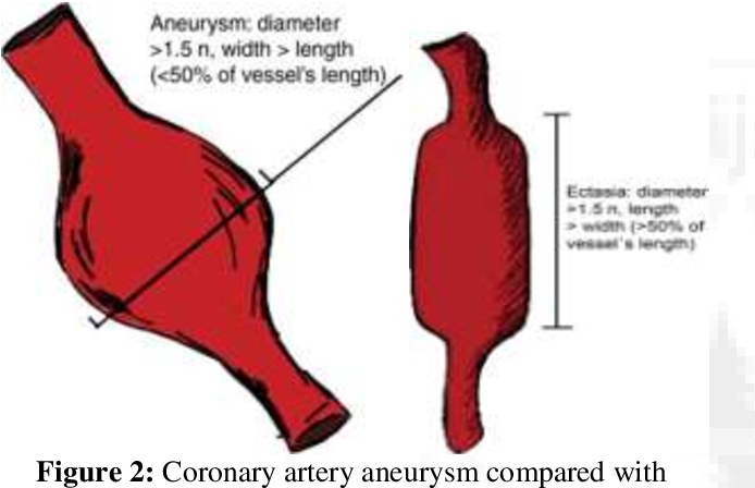 PDF] Study of Incidence of Coronary Artery Aneurysm and Ectasia during  Coronary Angiography in Tertiary Care Center | Semantic Scholar