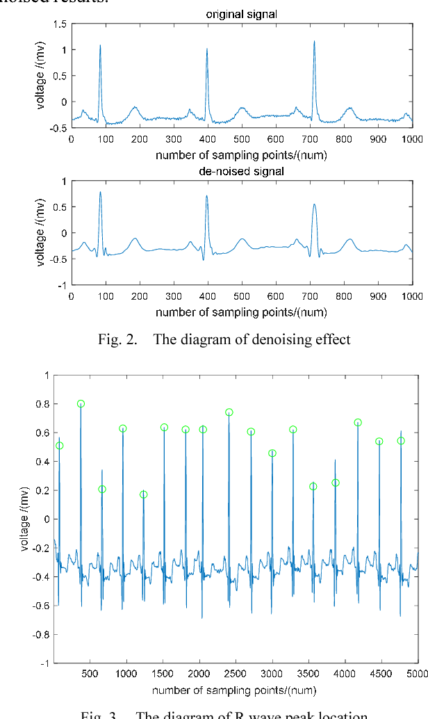 Classification of ECG signals based on 1D convolution neural