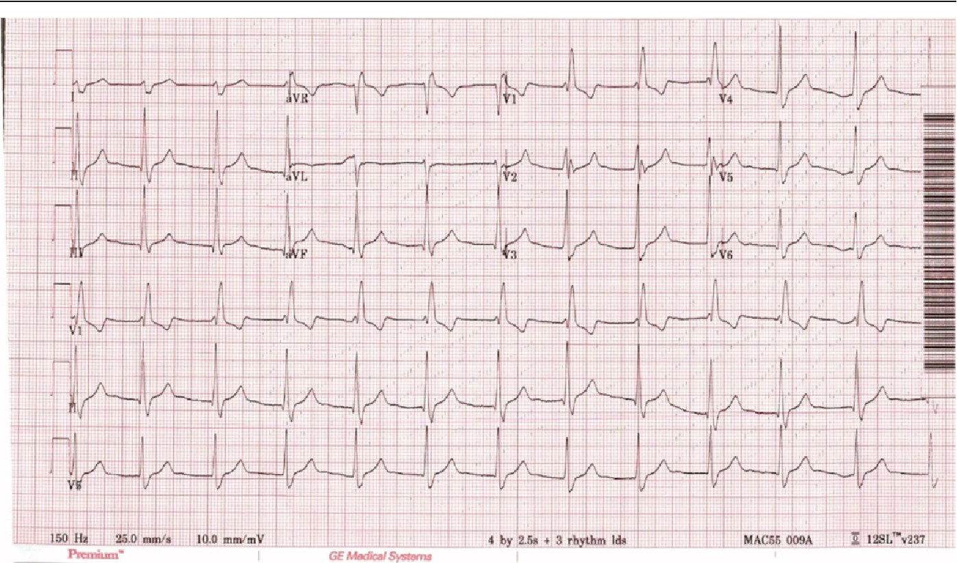 Figure 1 from Cardiac Complications of Unwitting Co