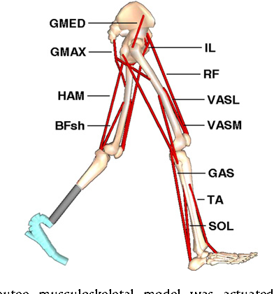 Figure 1 from Altering prosthetic foot stiffness influences
