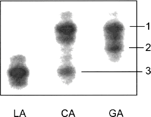 Autism and maternally derived aberrations of chromosome 15q