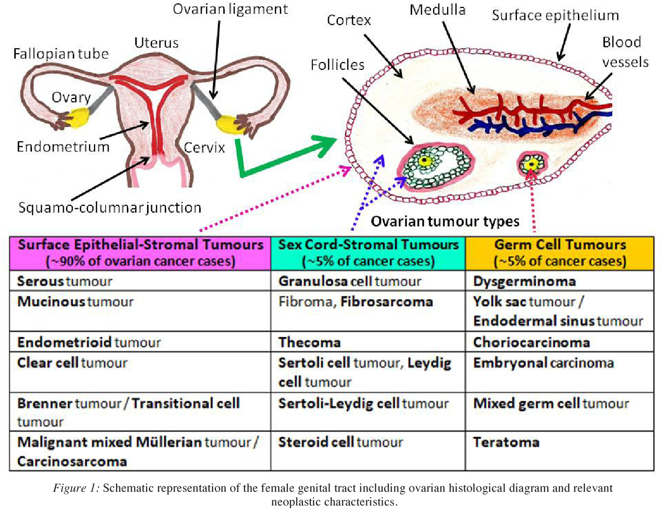 Pdf Gynaecological Cancers And Leptin A Focus On The Endometrium And Ovary Semantic Scholar