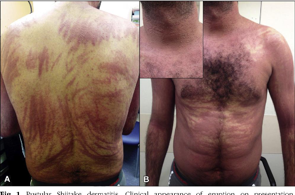 Figure 1 from Pustular flagellate dermatitis after