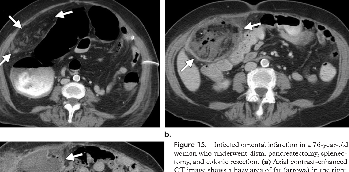 Figure 15 from Imaging manifestations of abdominal fat