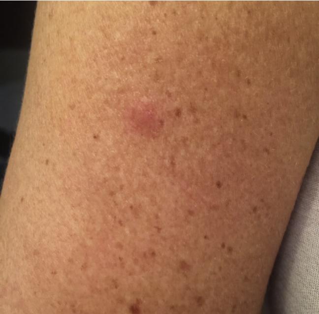 Figure 1 from Autoimmune progesterone dermatitis with